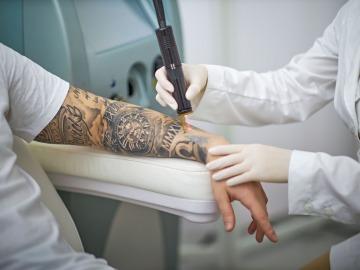 <b>Tetovējuma noņemšana ar lāzera palīdzību</b>