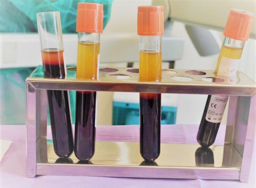 I-PRF. Фибрин, обогащённый тромбоцитами: передовая, эффективная и безопасная методика регенерации тканей