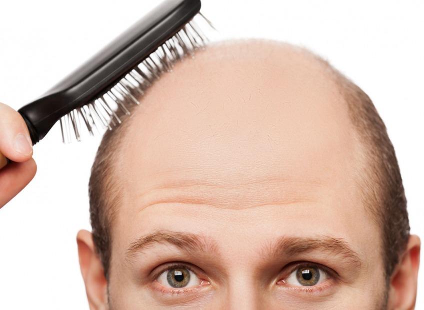 Когда надо обращаться к врачу из-за состояния волос?