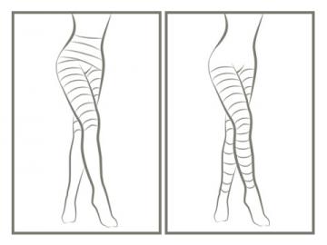 <b>Byotea Toning</b> – <i>tonizējoša bandāžas procedūra ķermenim</i>