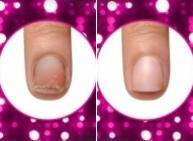 Как отрастить красивые длинные ногти? Передовые новости салонных процедур