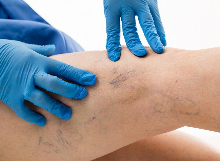 Mūsdienu virokozās ārstēšanas metodes. Krioskleroterapija ar CLaCS