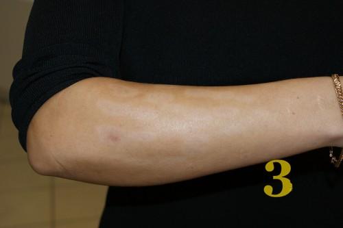 Лечение ожогов фотоэпиляция лазерная эпиляция отзывы симферополь